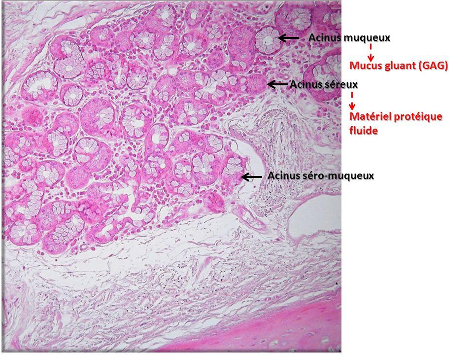 Acinus muqueux Mucus gluant (GAG) Acinus séreux Matériel protéique fluide Acinus séro-muqueux