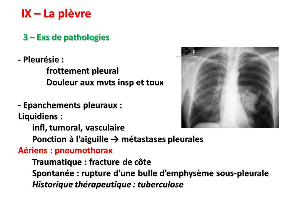 IX – La plèvre 3 – Exs de pathologies - Pleurésie : frottement pleural