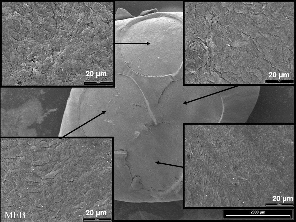 20 µm 20 µm 20 µm MEB 20 µm 87