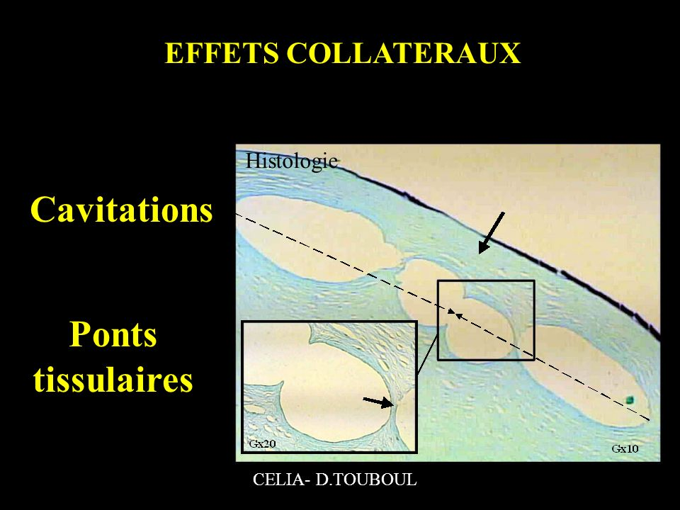 Cavitations Ponts tissulaires EFFETS COLLATERAUX Histologie