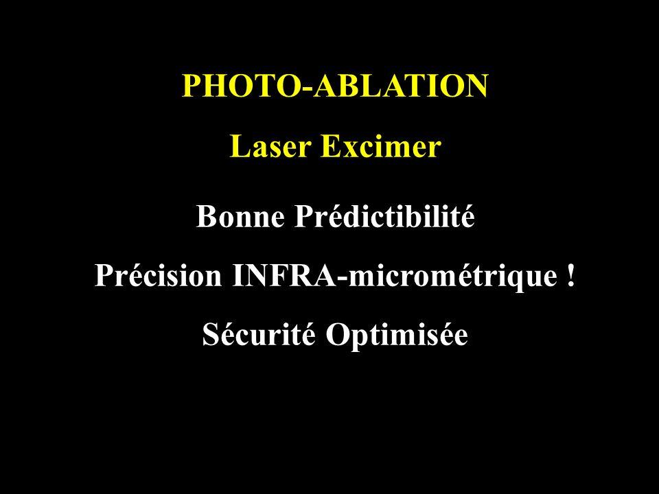 Précision INFRA-micrométrique !