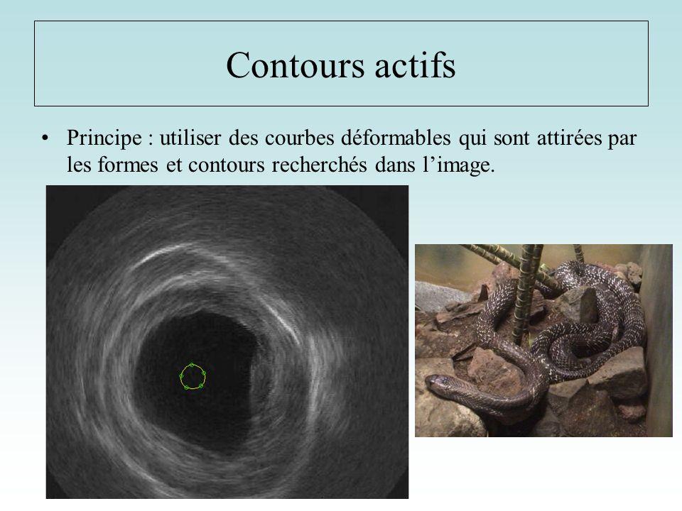 Contours actifs Principe : utiliser des courbes déformables qui sont attirées par les formes et contours recherchés dans l'image.