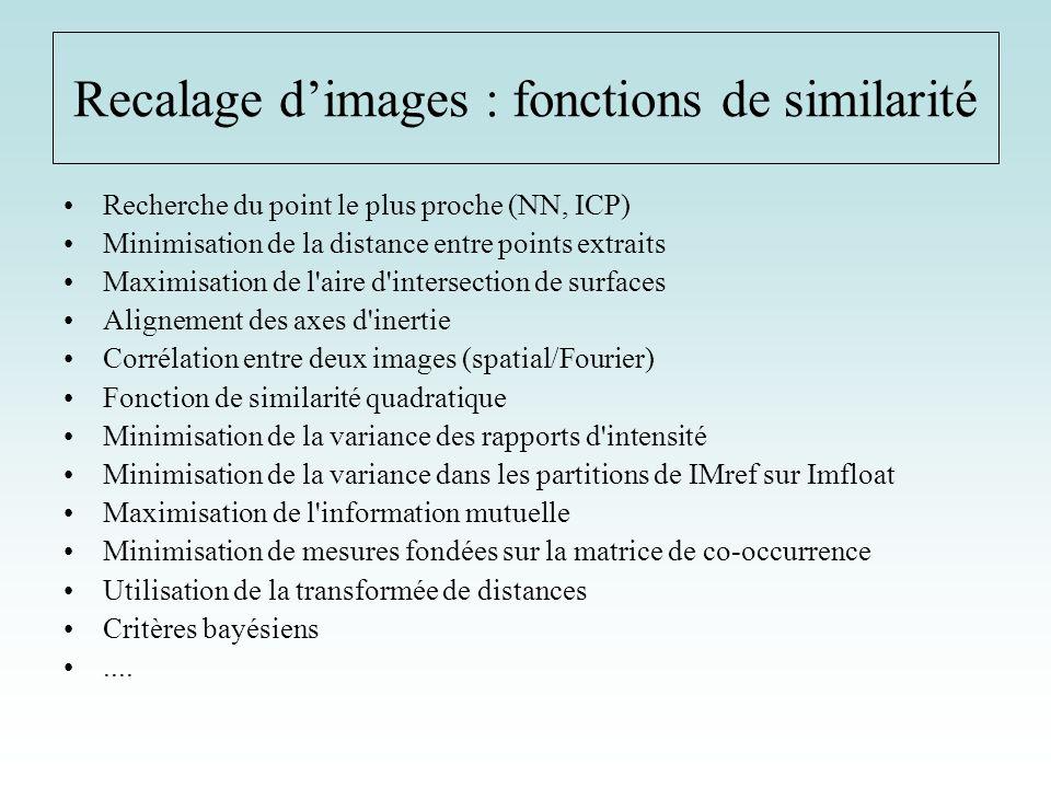 Recalage d'images : fonctions de similarité