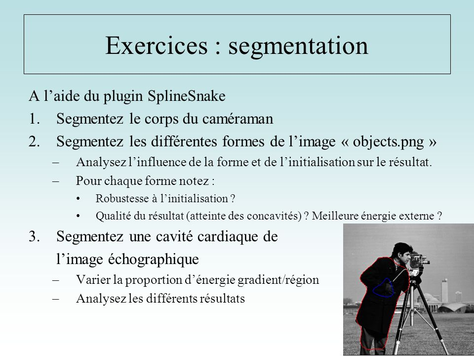 Exercices : segmentation