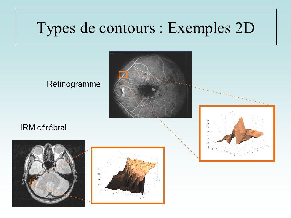Types de contours : Exemples 2D