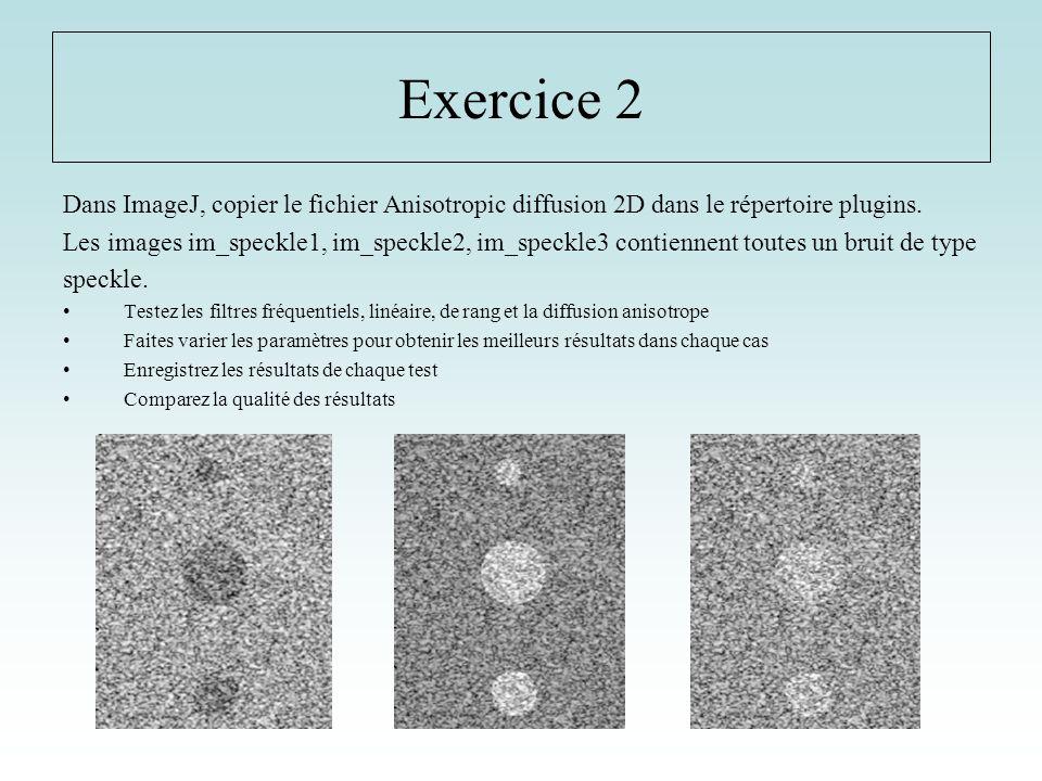 Exercice 2 Dans ImageJ, copier le fichier Anisotropic diffusion 2D dans le répertoire plugins.
