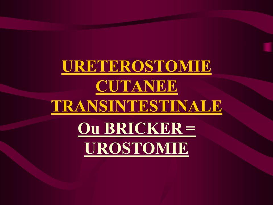 URETEROSTOMIE CUTANEE TRANSINTESTINALE