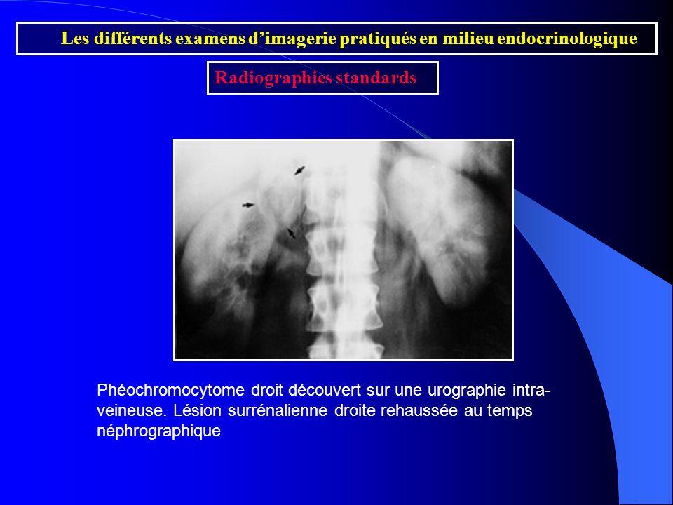 Les différents examens d'imagerie pratiqués en milieu endocrinologique