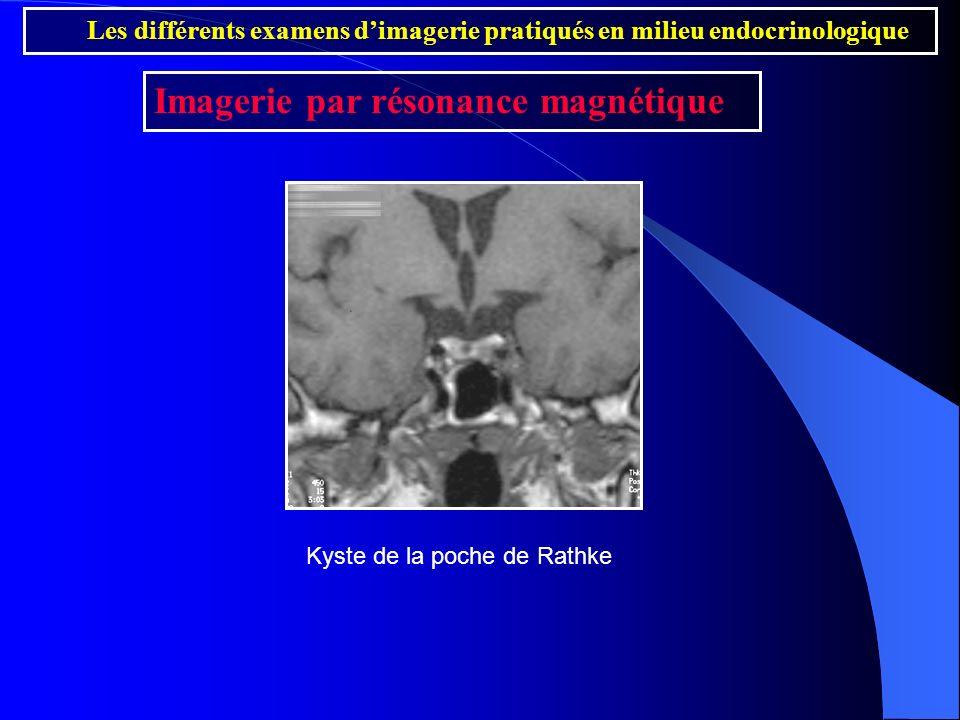 Imagerie par résonance magnétique