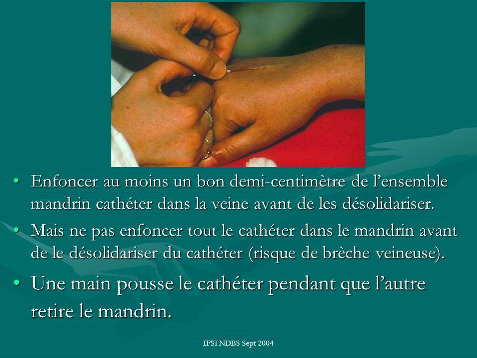 Une main pousse le cathéter pendant que l'autre retire le mandrin.