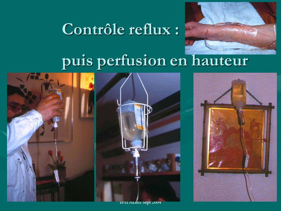 Contrôle reflux : puis perfusion en hauteur