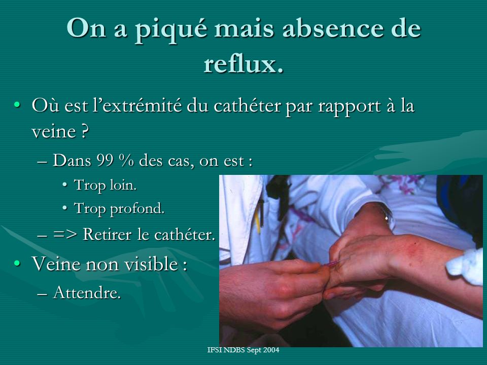 On a piqué mais absence de reflux.