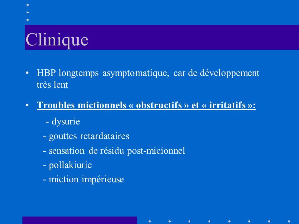 Clinique HBP longtemps asymptomatique, car de développement très lent. Troubles mictionnels « obstructifs » et « irritatifs »: