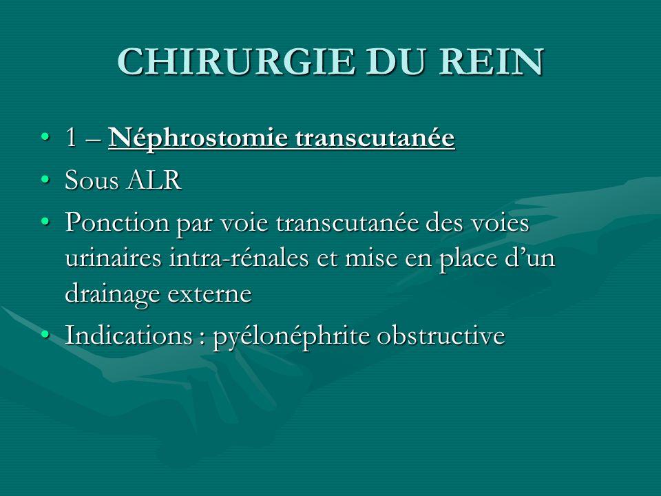 CHIRURGIE DU REIN 1 – Néphrostomie transcutanée Sous ALR