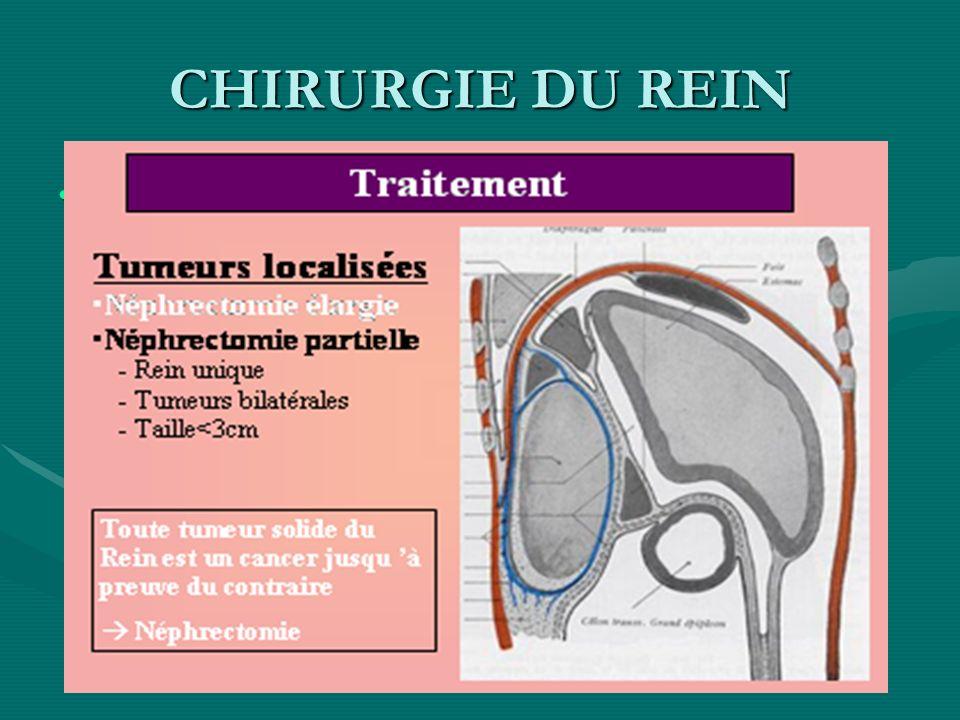 CHIRURGIE DU REIN -