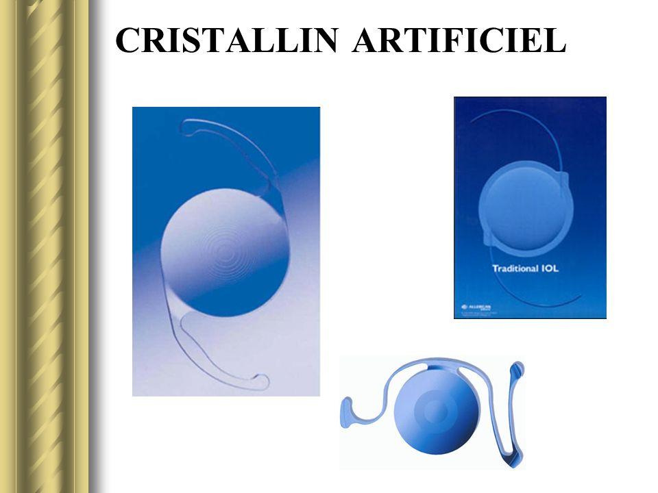 CRISTALLIN ARTIFICIEL