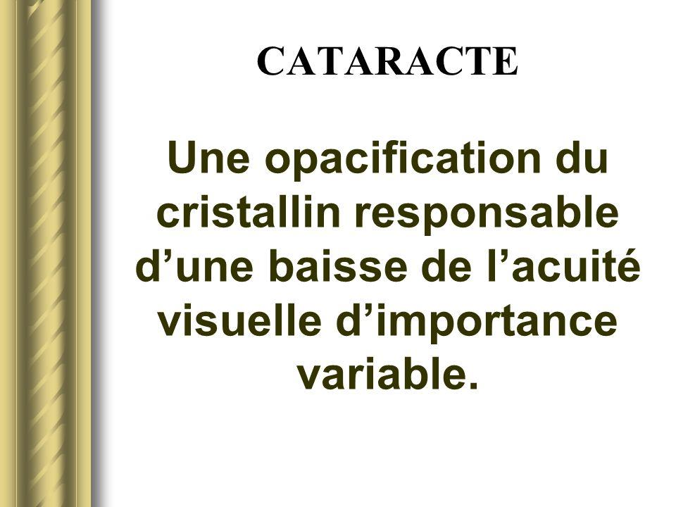 CATARACTEUne opacification du cristallin responsable d'une baisse de l'acuité visuelle d'importance variable.