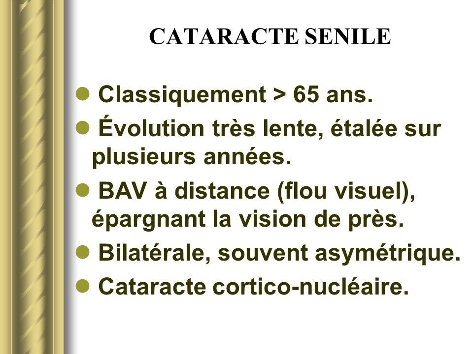 CATARACTE SENILE Classiquement > 65 ans. Évolution très lente, étalée sur plusieurs années.