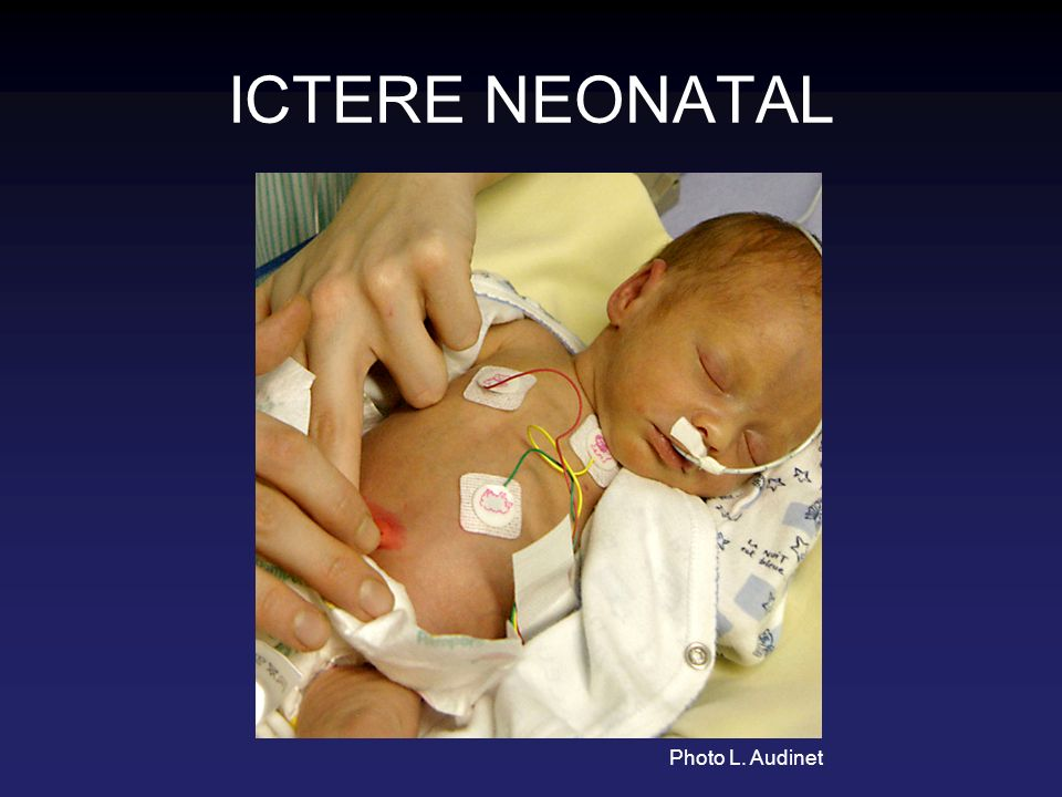 ICTERE NEONATAL Photo L. Audinet