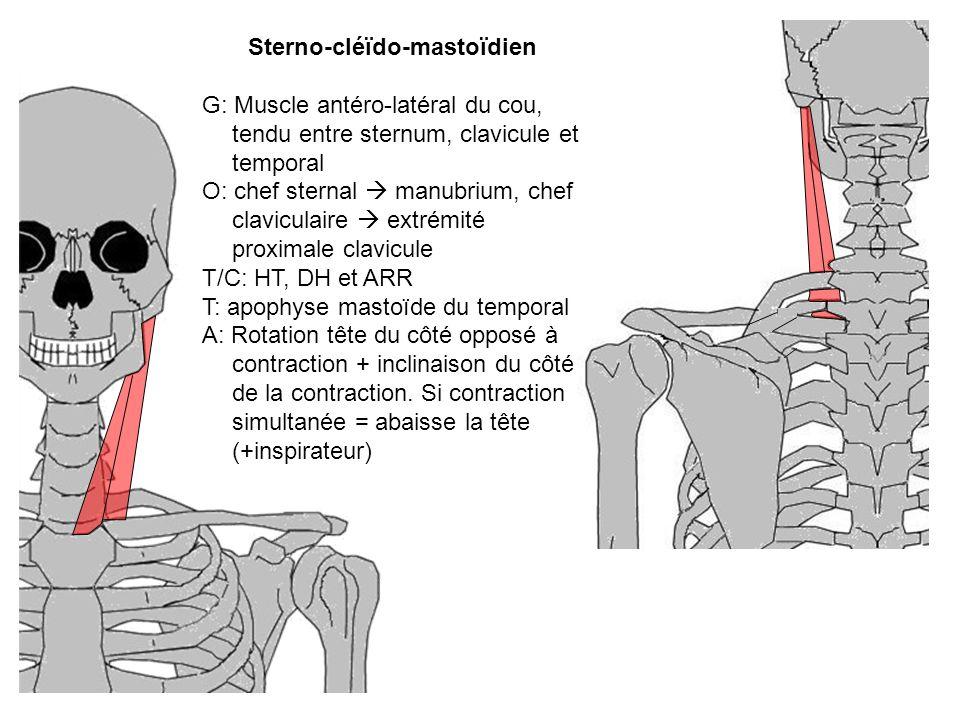 Sterno-cléïdo-mastoïdien