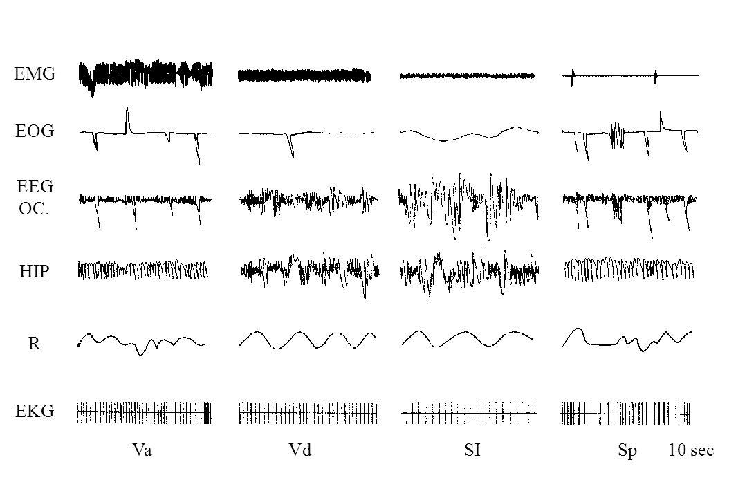 EMG EOG EEG OC. HIP R EKG Va Vd SI Sp 10 sec