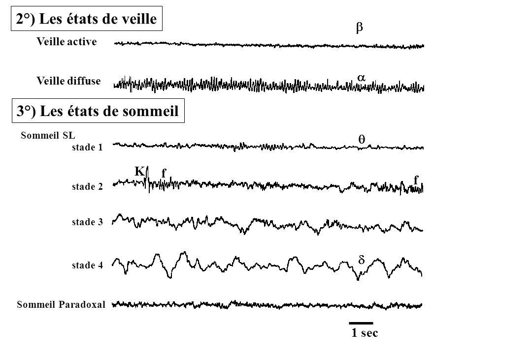 2°) Les états de veille 3°) Les états de sommeil b a q K f f d 1 sec