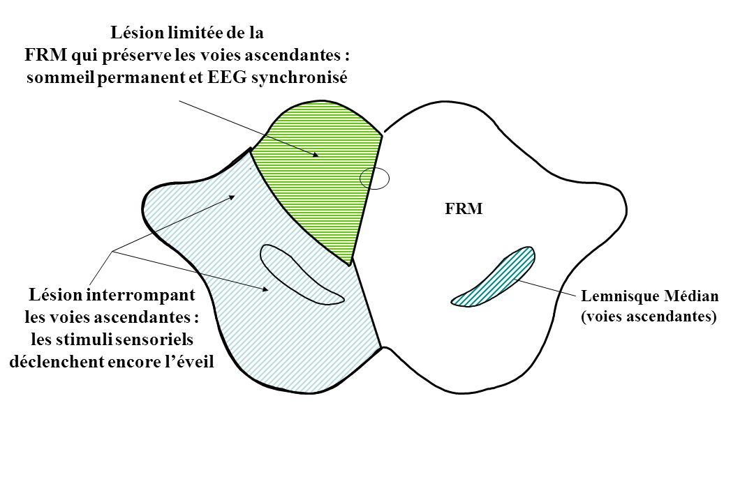 Lésion limitée de la FRM qui préserve les voies ascendantes : sommeil permanent et EEG synchronisé.