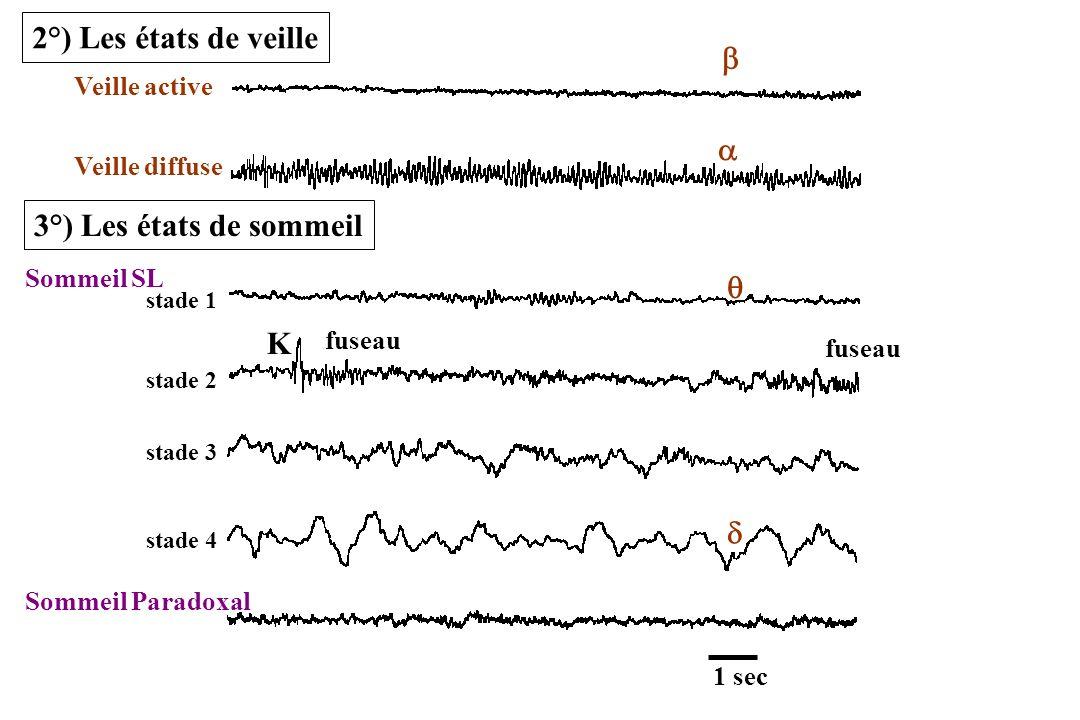 2°) Les états de veille b a 3°) Les états de sommeil q K d