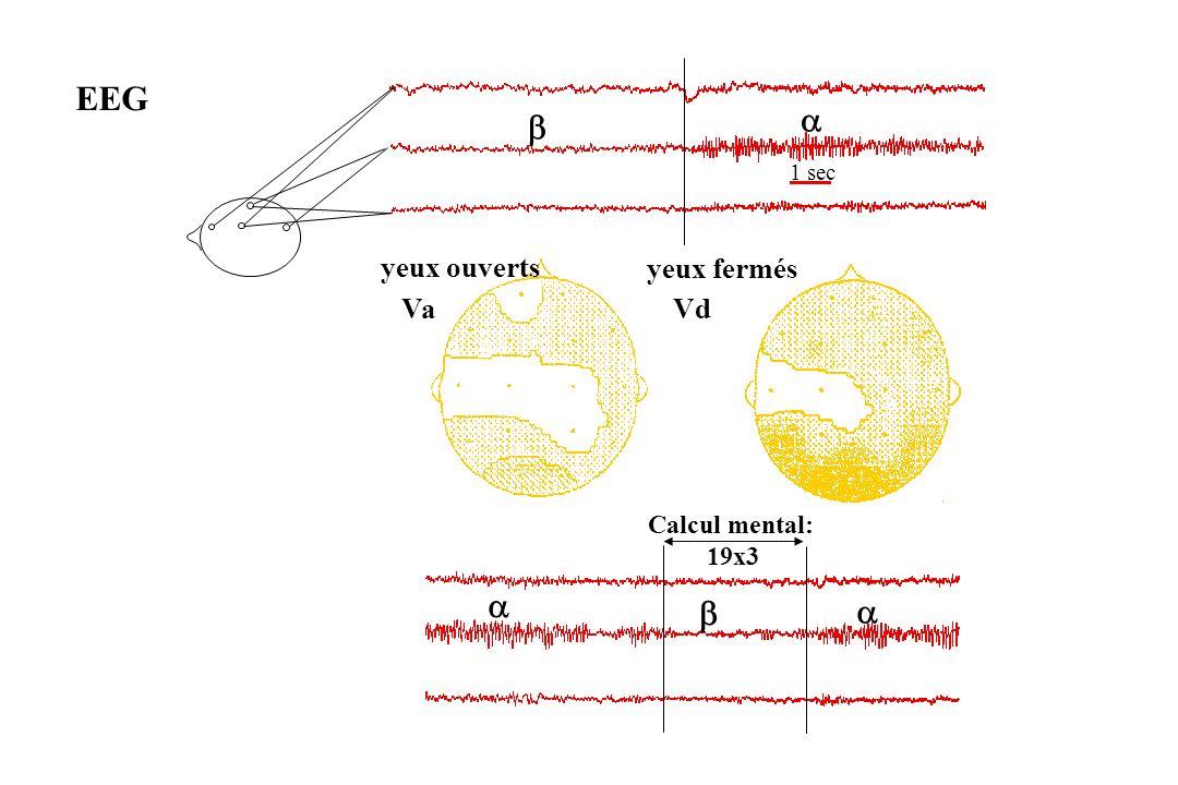 EEG a b 1 sec yeux ouverts yeux fermés Va Vd Calcul mental: 19x3 a b a