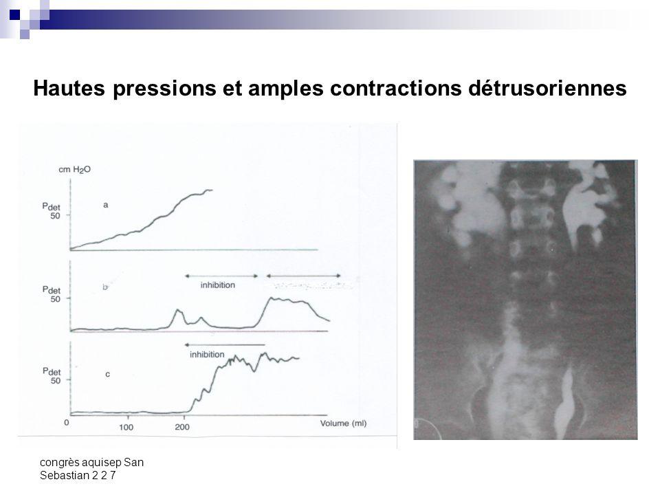 Hautes pressions et amples contractions détrusoriennes
