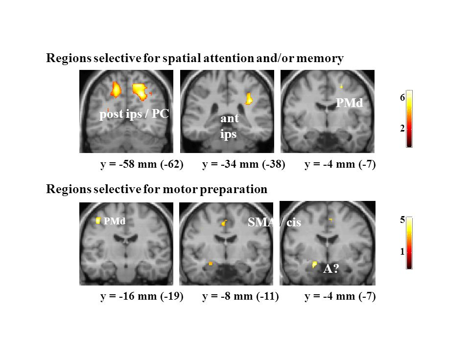 Regions selective for spatial attention and/or memory