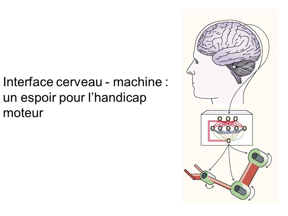Interface cerveau - machine : un espoir pour l'handicap moteur
