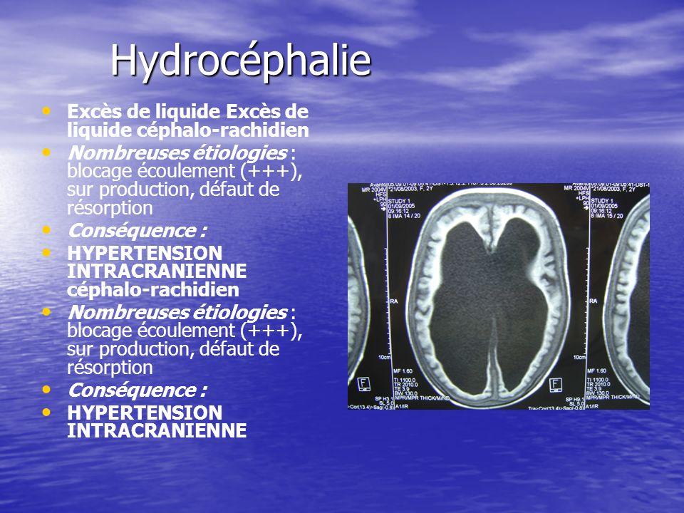 Hydrocéphalie Excès de liquide Excès de liquide céphalo-rachidien