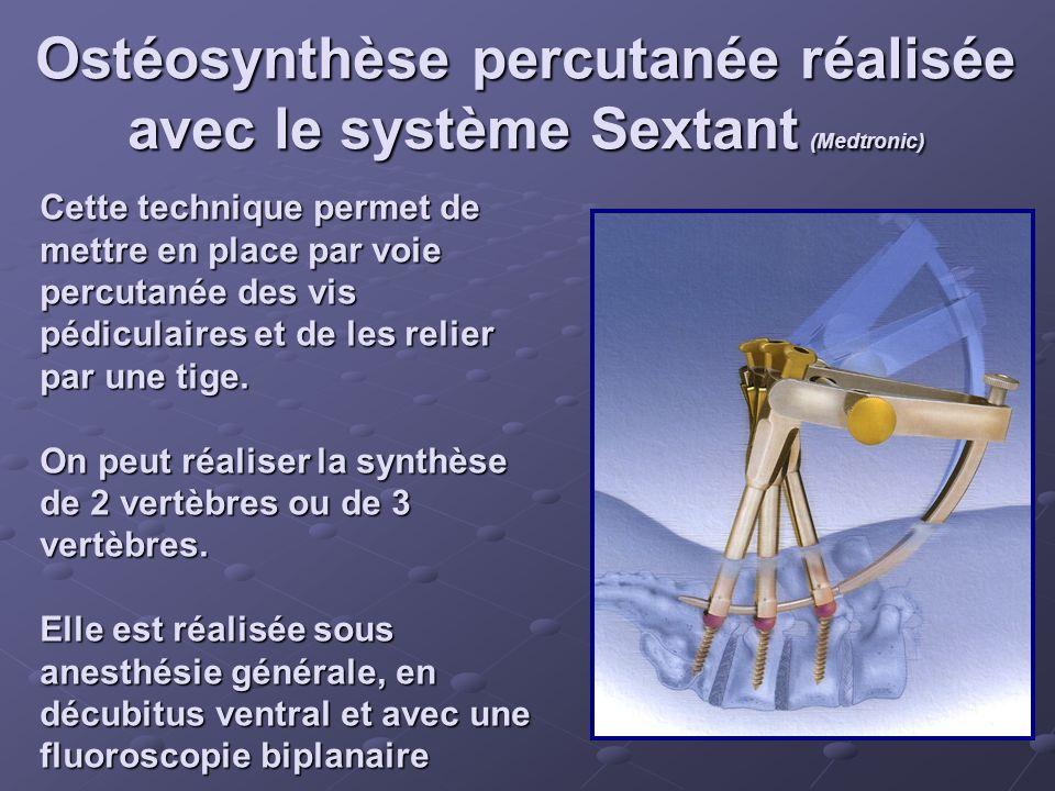 Ostéosynthèse percutanée réalisée avec le système Sextant (Medtronic)