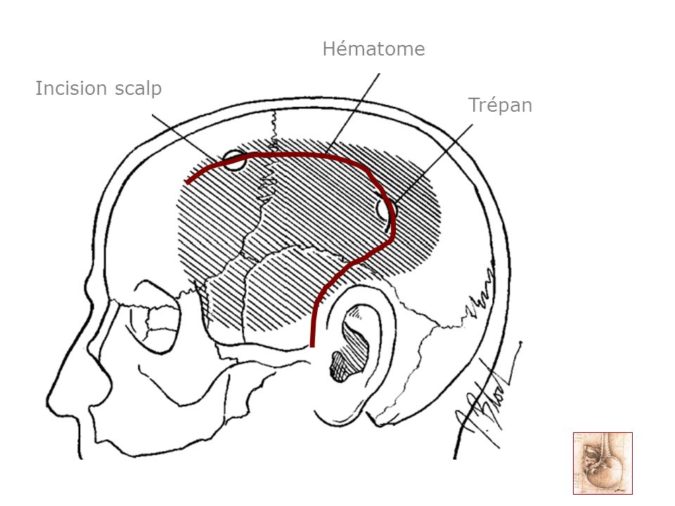 Hématome Incision scalp Trépan