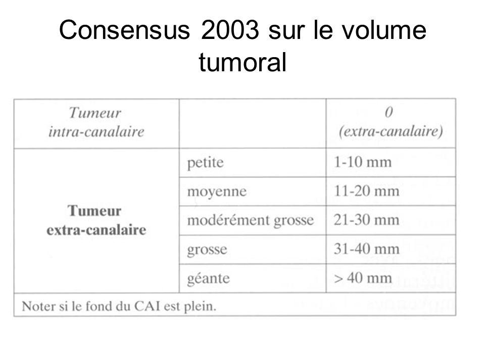 Consensus 2003 sur le volume tumoral