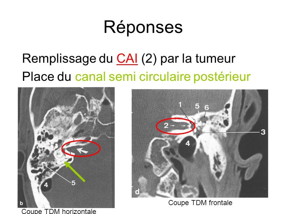 Réponses Remplissage du CAI (2) par la tumeur