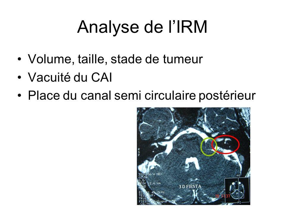 Analyse de l'IRM Volume, taille, stade de tumeur Vacuité du CAI
