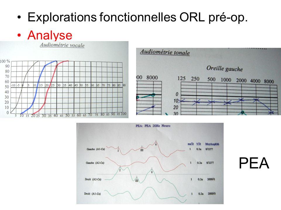 Explorations fonctionnelles ORL pré-op.