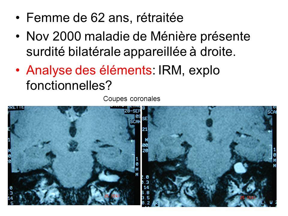 Analyse des éléments: IRM, explo fonctionnelles