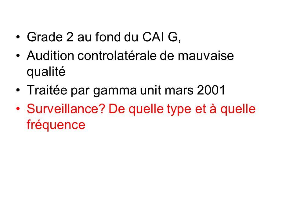 Grade 2 au fond du CAI G, Audition controlatérale de mauvaise qualité. Traitée par gamma unit mars 2001.