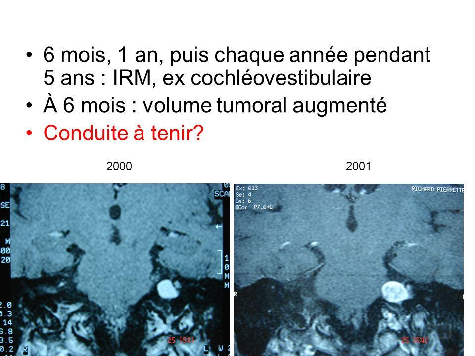À 6 mois : volume tumoral augmenté Conduite à tenir