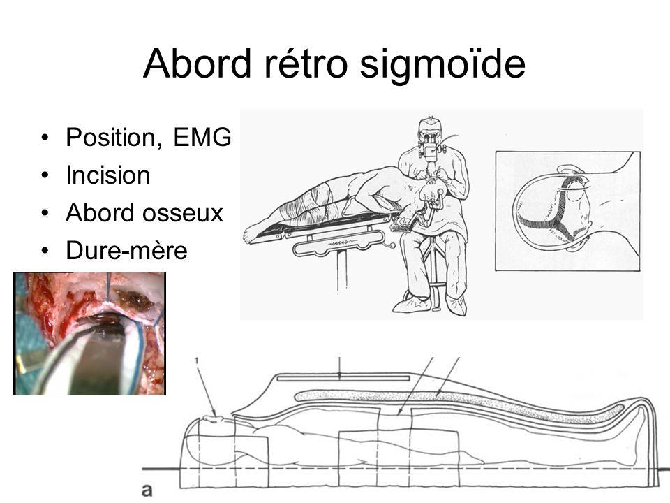Abord rétro sigmoïde Position, EMG Incision Abord osseux Dure-mère