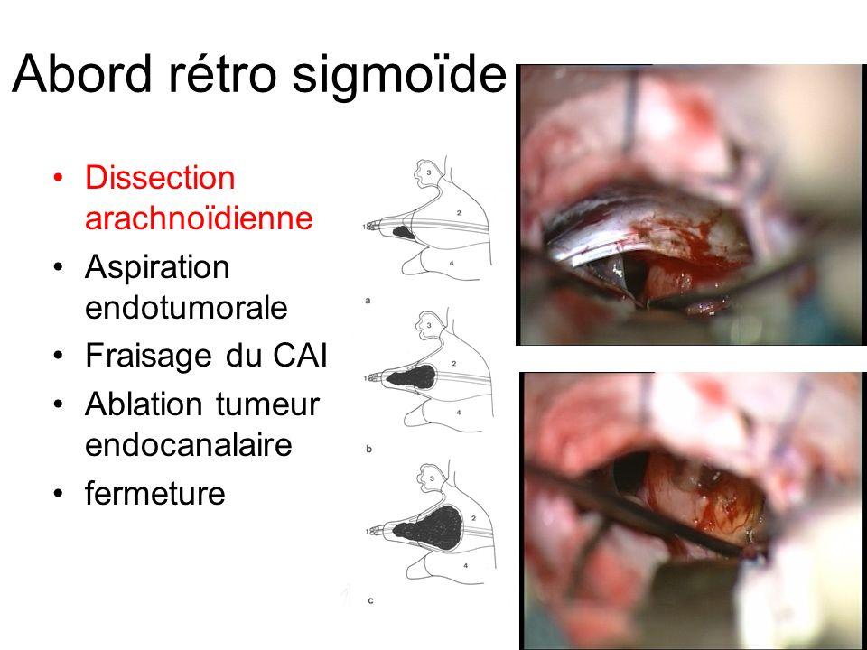 Abord rétro sigmoïde Dissection arachnoïdienne Aspiration endotumorale