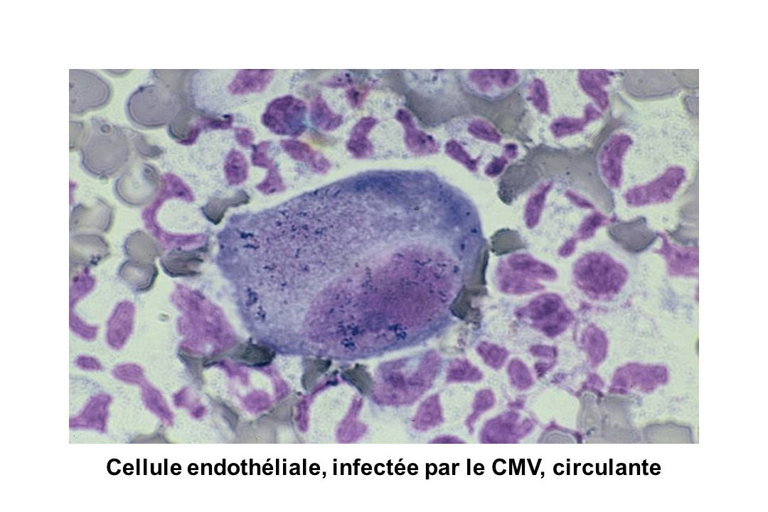 Cellule endothéliale, infectée par le CMV, circulante