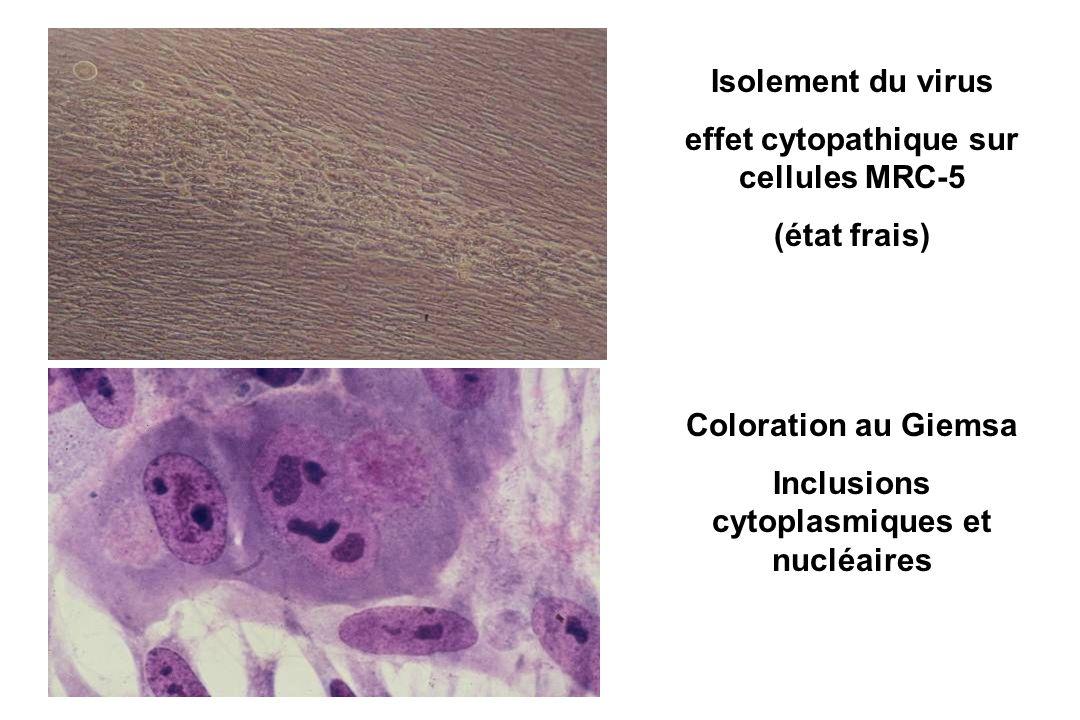 effet cytopathique sur cellules MRC-5