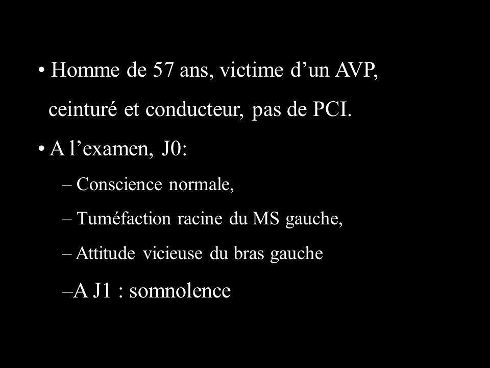 Homme de 57 ans, victime d'un AVP, ceinturé et conducteur, pas de PCI.