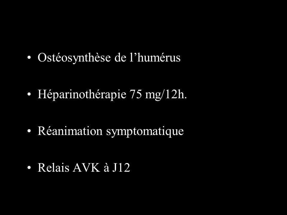 Ostéosynthèse de l'humérus