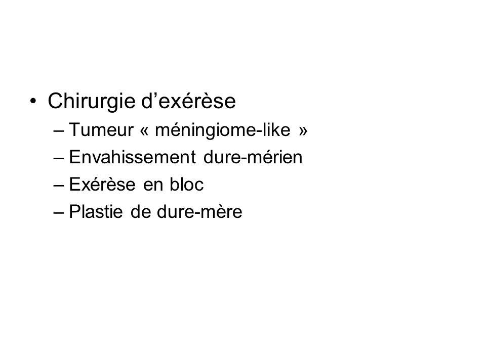 Chirurgie d'exérèse Tumeur « méningiome-like »