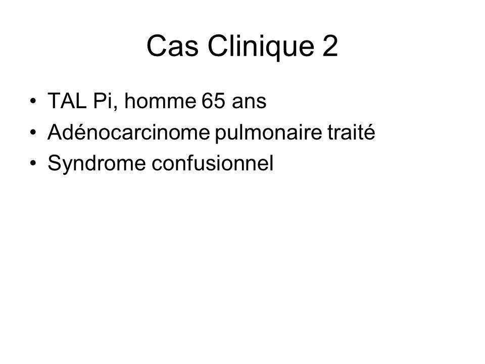 Cas Clinique 2 TAL Pi, homme 65 ans Adénocarcinome pulmonaire traité